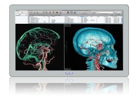 Penta Adlink Technology's Medical Panel-PC MLC 4-21 featuring latest Intel® Core™ processors